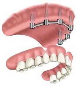 implantdenture2