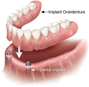 implantdenture1