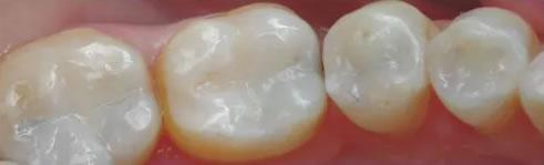 Fillings and Crowns - After