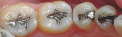 Fillings and Crowns - Before