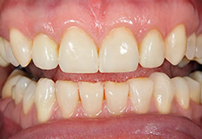 Smile Gallery - Fillings Crowns