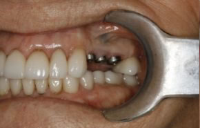 Smile Gallery - Implants