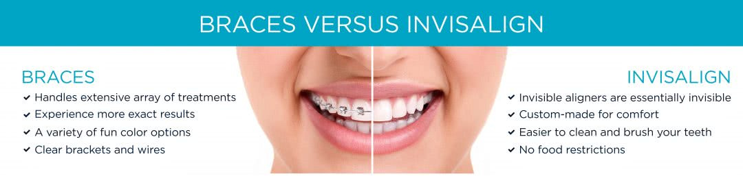 Traditional Braces and Invisalign Comparison