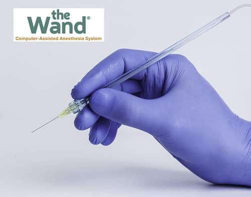 Sedation Dentistry - The Wand