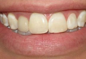 Smile Gallery - Veneers